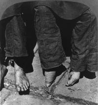 31 немыслимая фотография «лотосовых ножек» китайских женщин